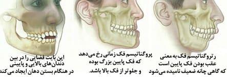 اصلاح ناهنجاریهای رایج فک و دندان