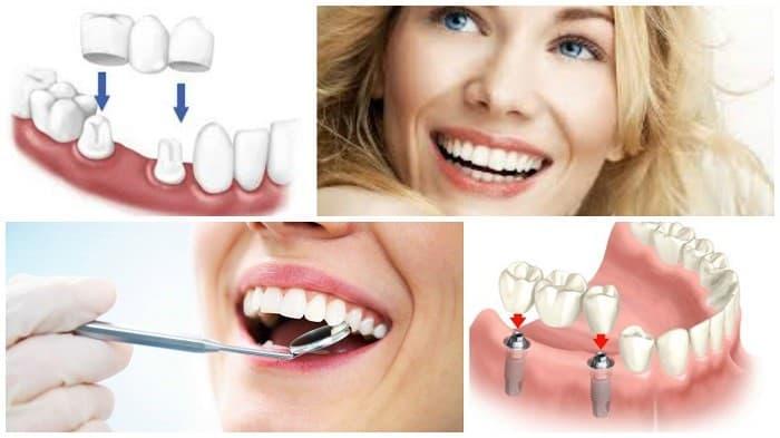 انواع پروتز دندان