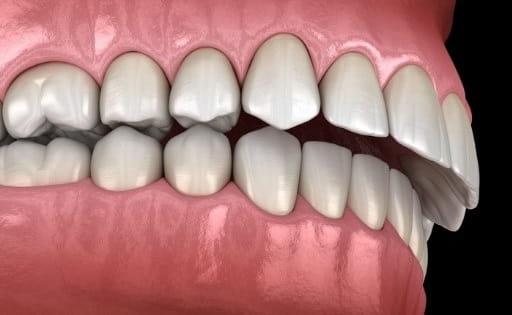 اوربایت از مشکلات موثر بر دندانهای جلوی فک بالا