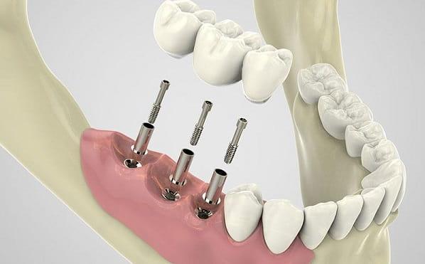 ایمپلنت چند دندان