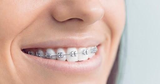 بریسهای فلزی ارتودنسی برای دندانهای فوقانی