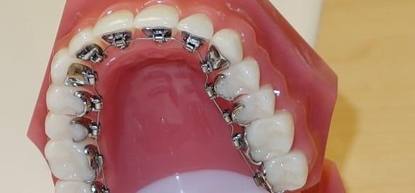 بریسهای لینگوال ارتودنسی برای دندانهای فوقانی