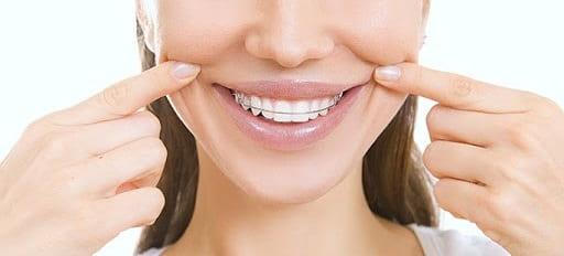 بریس چگونه بر بهداشت دهان و دندان تأثیر میگذارد؟