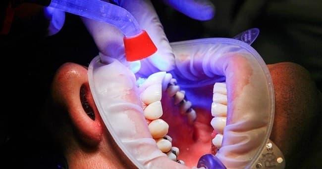 بلیچینگ حرفهای دندان