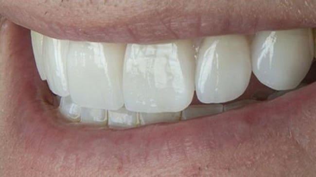 بلیچینگ دندان بعد از ارتودنسی