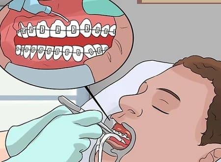 روشهای سفید کردن دندان در مطب دندانپزشکی