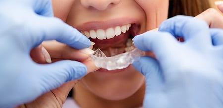 دندانپزشک درمان ارتودنسی را ارائه میکند؟ چه نیازی به متخصص ارتودنسی است