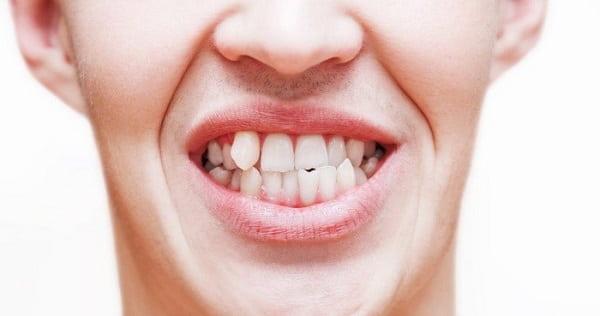 دندانهای با زاویه نامناسب از مشکلات موثر بر دندانهای جلوی فک بالا