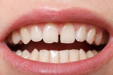 دندانهای با فاصله از مشکلات موثر بر دندانهای جلوی فک بالا