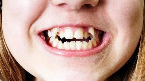 دندانهای شلوغ از مشکلات موثر بر دندانهای جلوی فک بالا