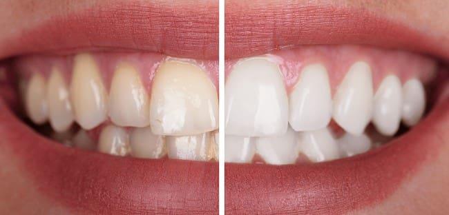روشهای بلیچینگ دندان پس از ارتودنسی
