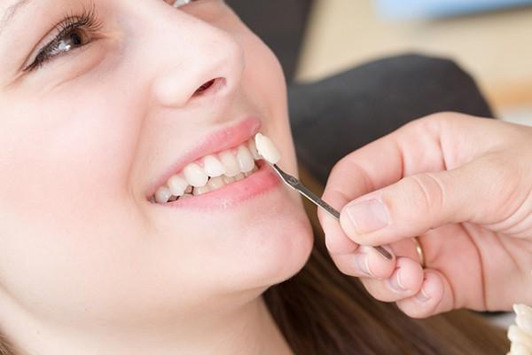 صاف و مرتب کردن دندانهای کج با استفاده از لمینت