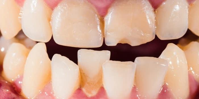 علت کج شدن دندان کودکان و بزرگسالان