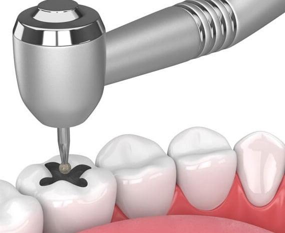 فیلینگ آمالگام دندان چیست؟