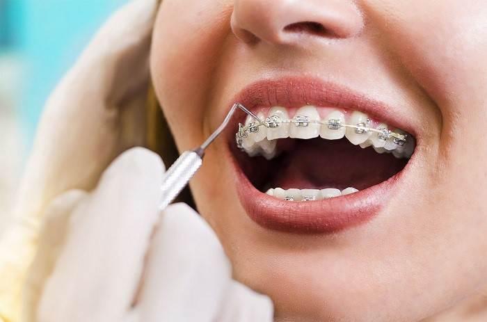 مرتب و صاف کردن دندان با ارتودنسی