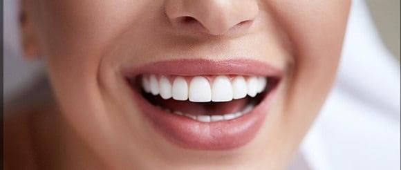 مزایا لیفت لثه و افزایش طول تاج دندان