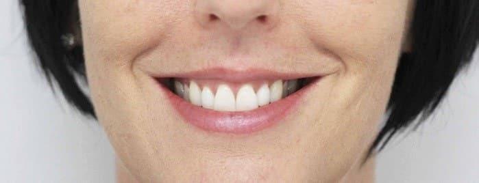 نتایج لیفت لثه و افزایش طول تاج دندان