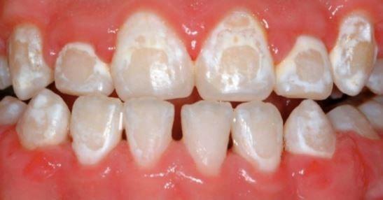 چرا دندانها در اثر استفاده از بریس زرد میشوند؟