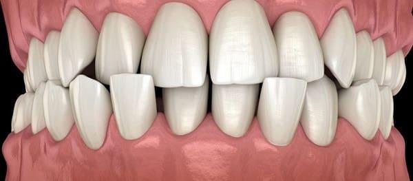 کراس بایت از مشکلات موثر بر دندانهای جلوی فک بالا