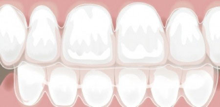 بریسهای نامرئی دندان