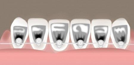 بریسهای لینگوال دندان