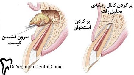 برداشتن کیست دندان