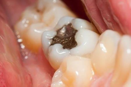 هزینه پر کردن دندان
