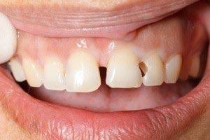 قیمت پر کردن دندان