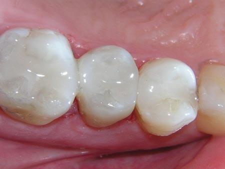 هزینه پر كردن دندان با كامپوزيت