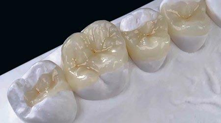هزینه پرکردن دندان با مواد سرامیکی