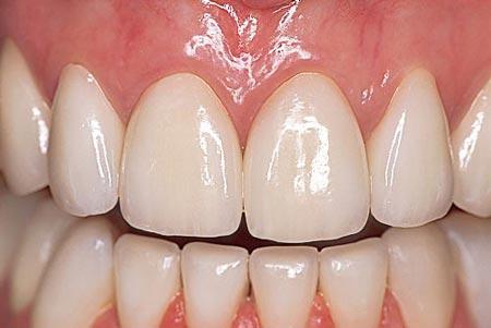 پرکردن دندان با گلاس آینومر