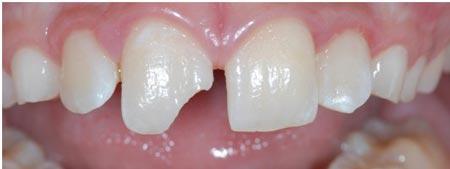 لب پریدگی دندان