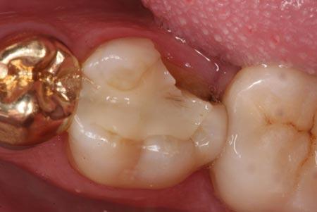 شکستگی کاسپ دندان